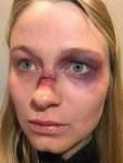 Eine plastische Wunde auf der Nase und ein blaues Auge - fertig ist das Halloween-Make-up. Foto: Heide Park Resort, 2017
