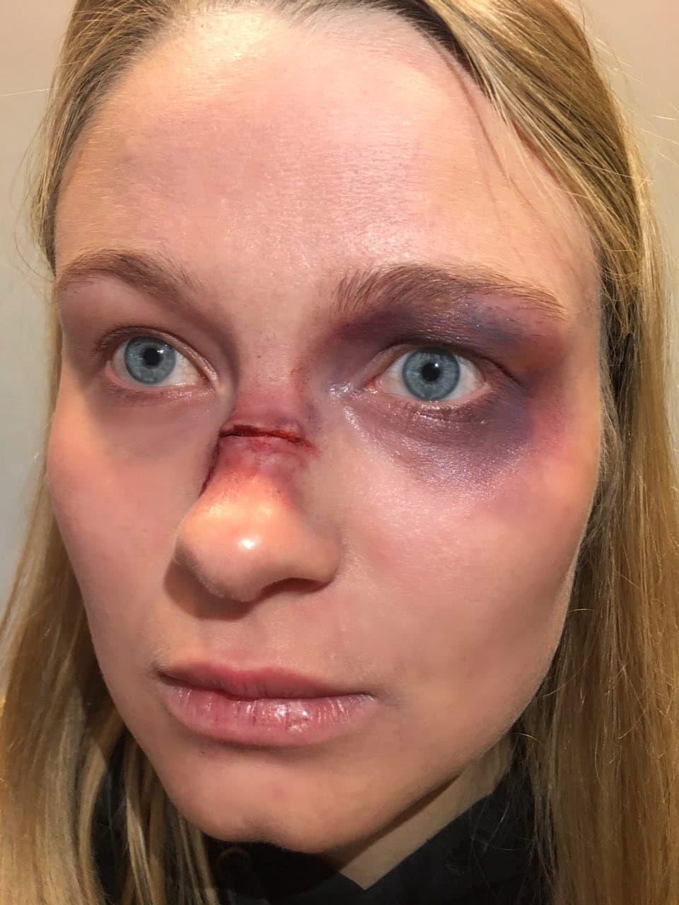 Heide Park Halloween Schminktipp Gebrochene Nase Und Blaues Auge